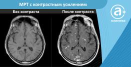 МРТ с контрастным усилением